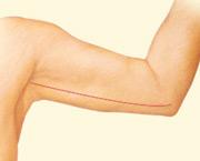 Post Arm Lift