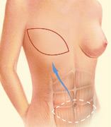 Breast Rectonstruction TRAM Flap