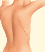 Breast Reconstruction Latissimus Dorsi Flap