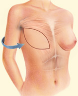 Provides the support for a breast implant