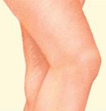Leg Veins, After