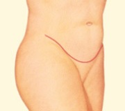Tummy Tuck, Lower Incision