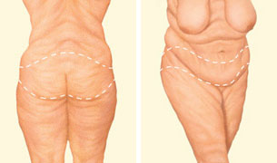 Lower body lift incision