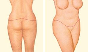 Body lift closing incision