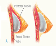 Submuscular and Subglandular Breast Implant Placement