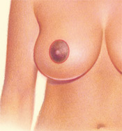 Breast Reduction - Circular Pattern, After