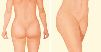 Liposuction rear and side after