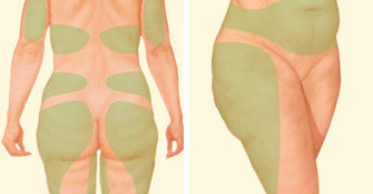 Liposuction problem areas