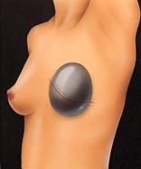 Breast expander