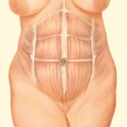 tummy tuck abdomen before