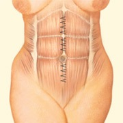 tummy tuck abdomen after