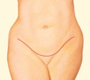 tummy tuck result front