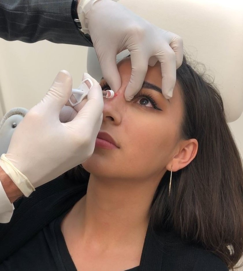 How A Nonsurgical Rhinoplasty Can Provide Amazing Results Asps