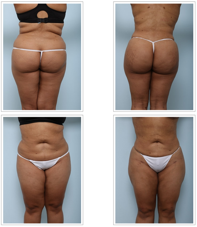 Four key things to know before your buttock augmentation
