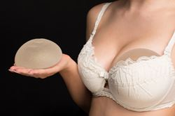 Will you need to replace your breast implants?