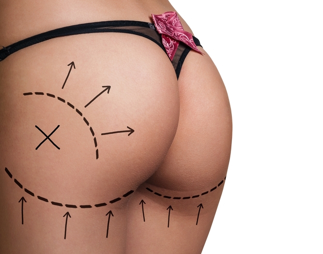 Recovering from a Brazilian butt lift | ASPS