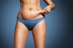 The skinny on CoolSculpting
