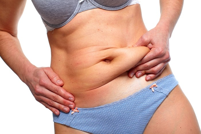 Different tummy tuck techniques | American Society of Plastic Surgeons