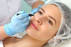 Important considerations in eyelid rejuvenation
