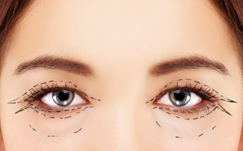 Top 5 Reasons You Should Choose Eyelid Surgery