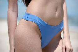 What kind of scar can you expect after a tummy tuck?