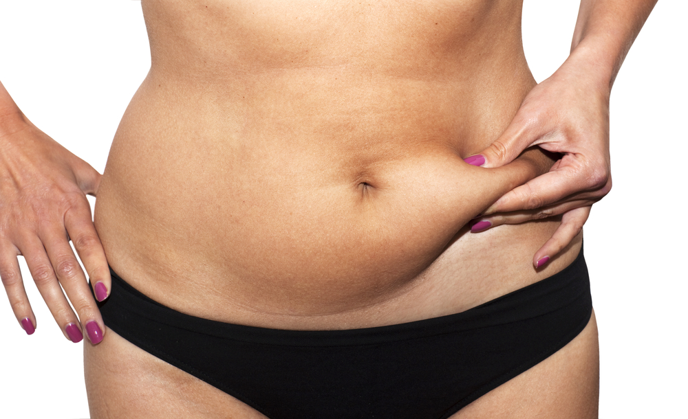Tummy Tuck Or Liposuction American Society Of Plastic Surgeons