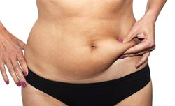 Tummy tuck or liposuction?