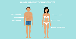 Body contouring's latest frontier: High-definition liposuction