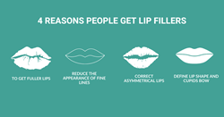 Four reasons a person may want lip filler