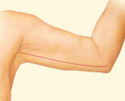 body contouring arm lift