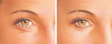 eyelid surgery lower eyelid incision
