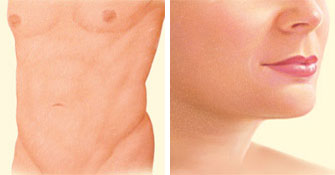 Liposuction front and face after