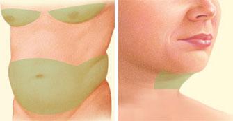 Liposuction problem areas