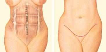 Tummy tuck incision front abdomen sutures