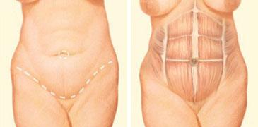 Tummy tuck incision front abdomen