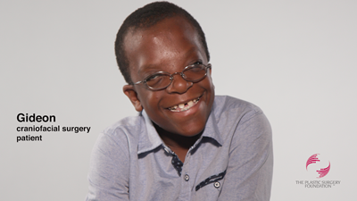 Gideon's Apert Syndrome Journey