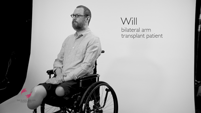 Resilience – Bilateral Arm Transplant Story
