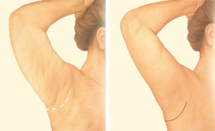 Arm lift minimal incision