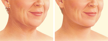 Facelift neck lift incision