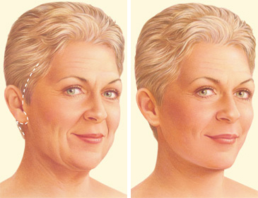 facelift traditional incision