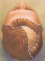 Hair Transplant Procedure Steps American Society Of Plastic Surgeons