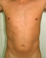 laser assisted lipo before picture