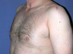 laser assisted lipo after picture