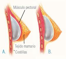 inserción y colocación del implante