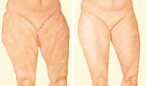 Thigh Lift Procedure | American Society of Plastic Surgeons