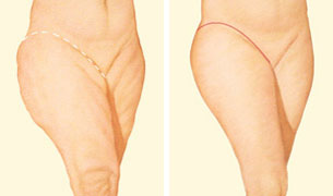 Outer thigh lift incision