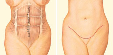 Tummy tuck incision front abdomen sutures