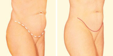 Tummy tuck side before and after